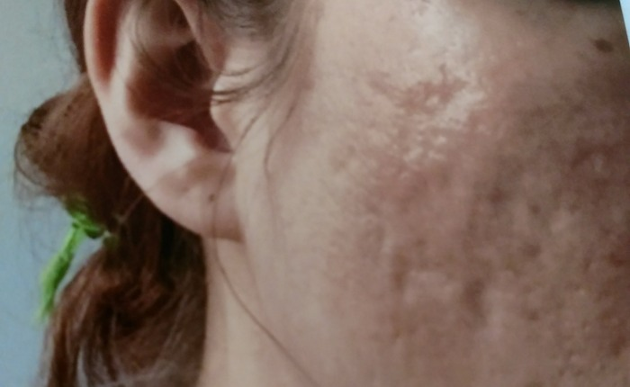 My Acne Scar SubcisionVideo
